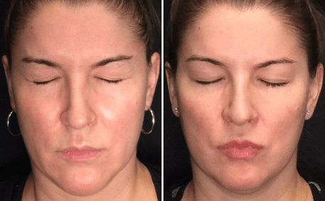 Dysport® Before and After for Glabella Area