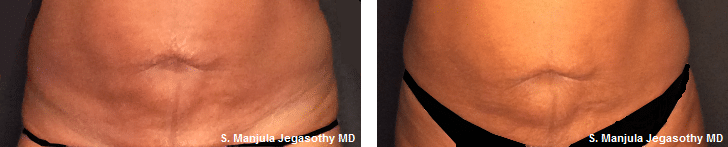 Before and After Viora® Laser Treatment for Abdomen