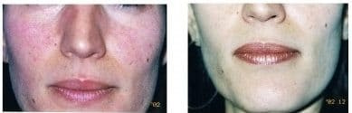 VBeam® Laser Treatment for Redness Rosacea Before and After 1 Month with 2 Treatments