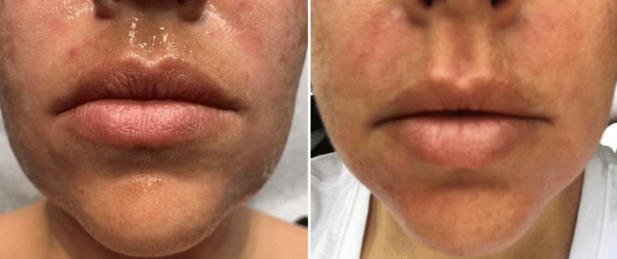 Best Fraxel® Clear + Brilliant for Brown Spots   Melasma