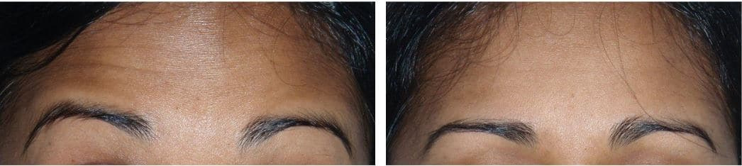 Botox® Cosmetic for the forehead area