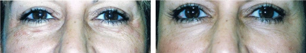 Botox® Cosmetic for Crows Feet