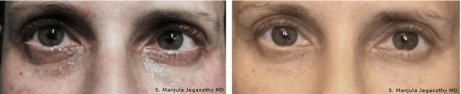 Best Fraxel® and Viora® Cosmetic Laser Combo Treatment for Eyelids