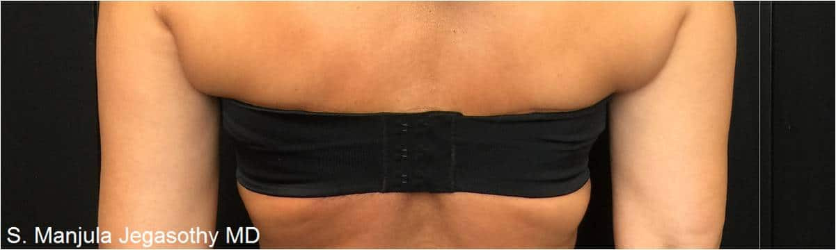 Kybella Bra Line Before Treatment