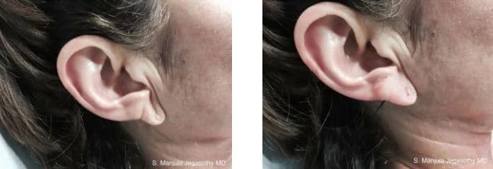 Before and after 1 treatment of Restylane® injected to plump earlobes.