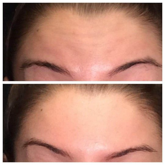 Botox Cosmetic® / Dysport® / Xeomin® to help shape brows and erase wrinkles