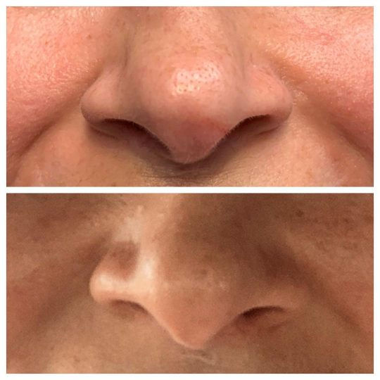 Botox® Cosmetic used to fix nasal deviations