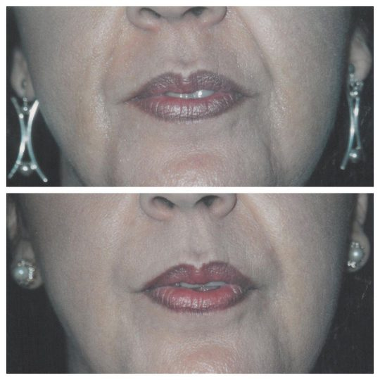 Facial Fillers used to fill facial creases and wrinkles