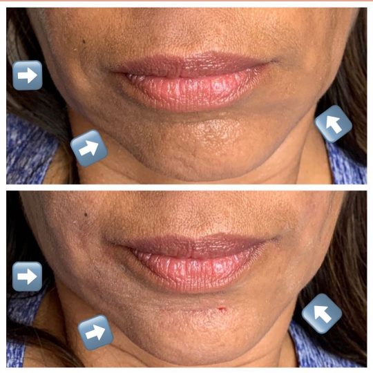 Facial Fillers used to fix facial symmetry