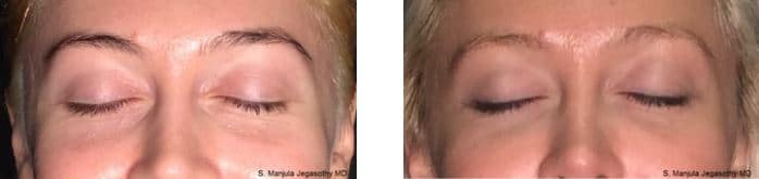Viora® Radiofrequency Laser for Eyelid Skin Tightening