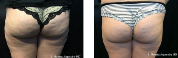 Viora® Radiofrequency Laser on the buttocks area