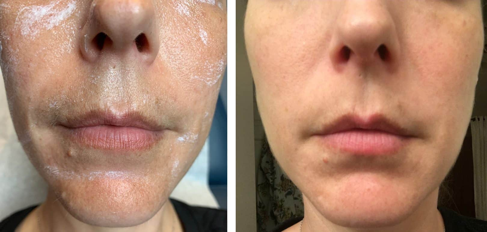 Best Fraxel® Clear + Brilliant for Brown Spots on Perioral Area