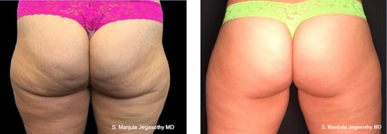 Before and After 12 Months Viora® Laser Treatment for Buttock Cellulite