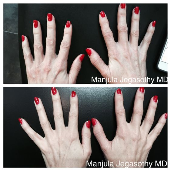 Viora® Skin Tightening after 1 Treatment for Crepey Hands