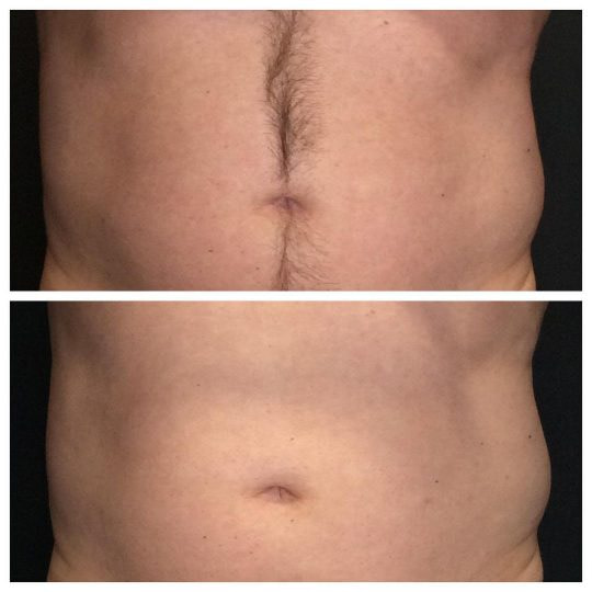 VanquishME™ Fat Melting laser treatments used to reduce love handles