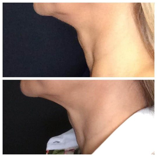 Ultherapy®️ used for non-surgical necklift