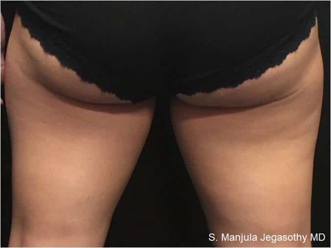 Kybella Thighs - Pre 8 Months