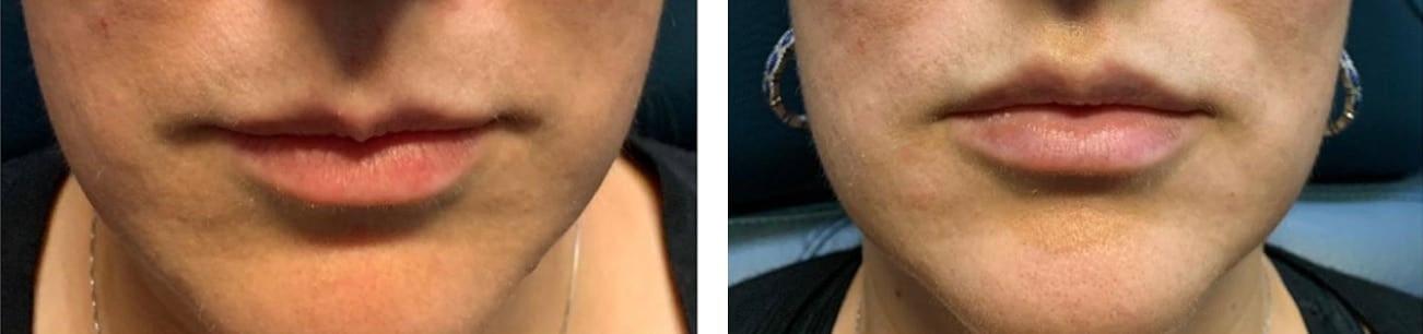 Botox ® Cosmetic for Lips  | Botox Miami