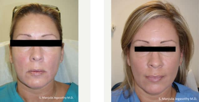 Dysport® and Sculptra® for sagging cheeks and jawline | Botox Miami